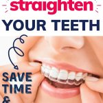 Byte aligners review